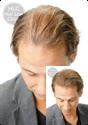 Laser Hair Retention